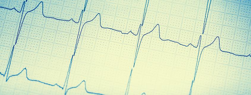 Ruhe EKG und Belastung EKG