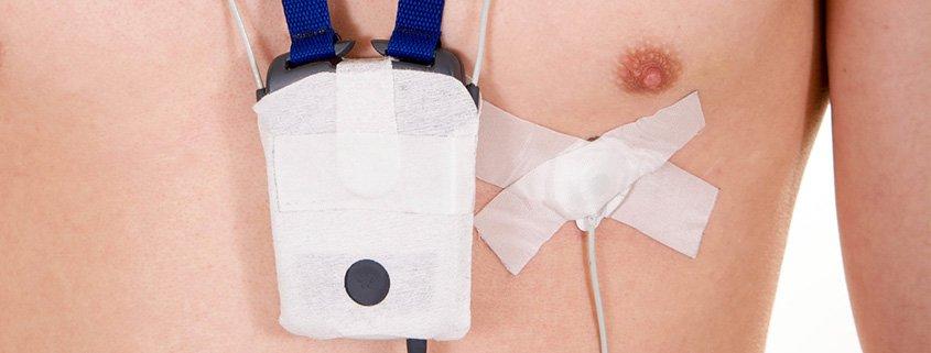Langzeit EKG oder 24- Stunden EKG